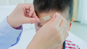 What Are Some Basic First Aid Treatments of Head Injuries?