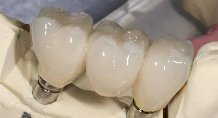 How Much Pain Typically Occurs After a Tooth Implant?