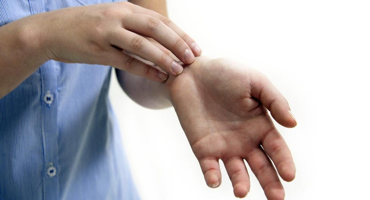 What Are the Causes of Eczema?