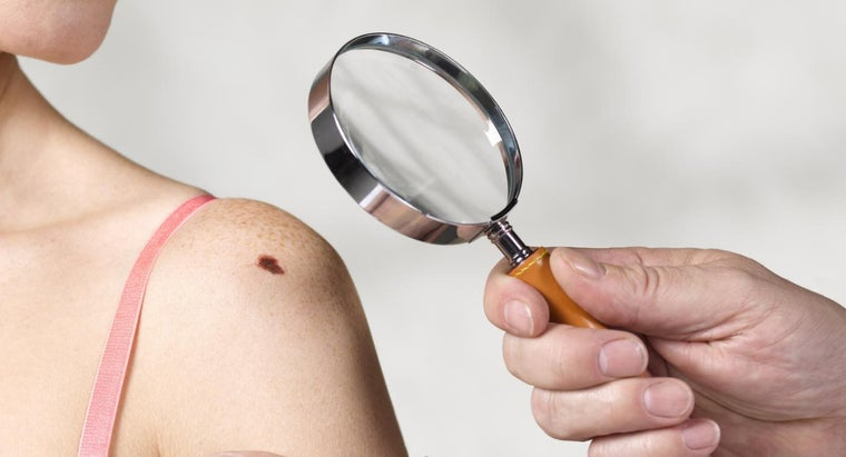 What Are the Symptoms of the Early Stages of Skin Cancer?