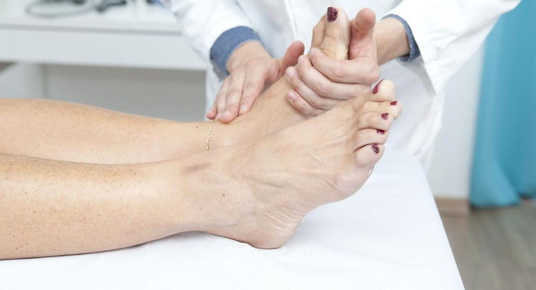 How Can You Ease Bunion Pain?