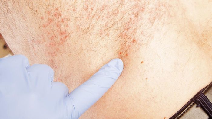 Where Do You Find Pictures of a Shingles Skin Rash?