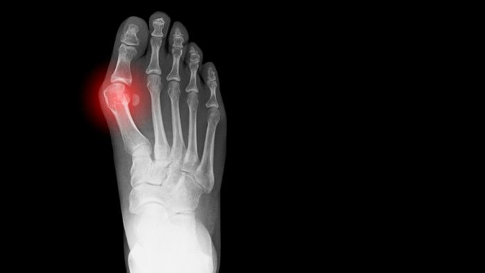 What are the causes of bunions?