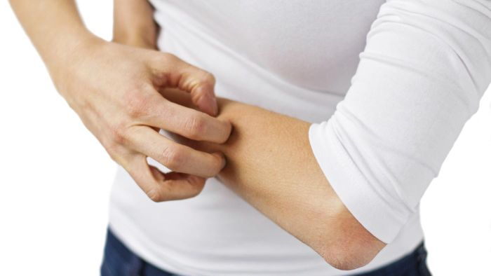 How Do You Stop Itching If You Don't Have a Rash?