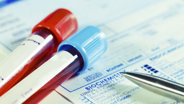 What Is an HGB Blood Test Used For?