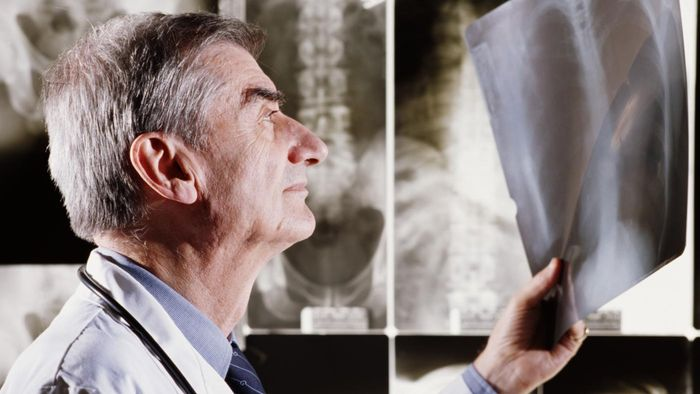 What Are the Disadvantages of X-Rays?