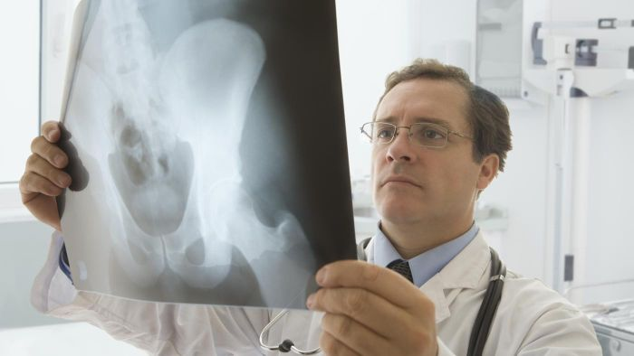 What Is the Difference Between Hip Resurfacing and Hip Replacement?