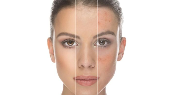 Where Can You Find Pictures of Rosacea Online?