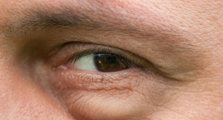 What Are the Possible Causes of Swelling Under the Eyes?