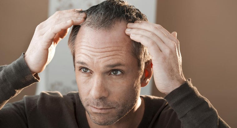 Is There a Cure for Alopecia?