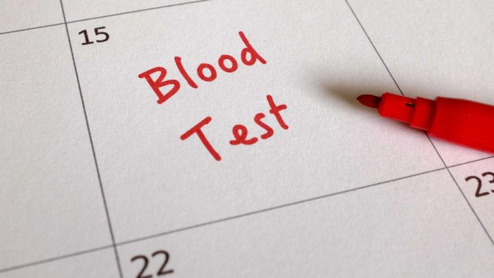 Do You Need a Blood Test to Find Early Signs of Prostate Cancer?