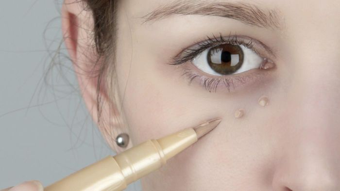 What Is the Best Remedy for Dark Eye Circles?