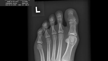 What Does Bunion Surgery Involve?