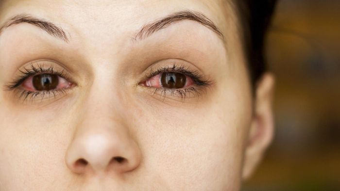 What Are Some Good Home Remedies for Eye Allergies?