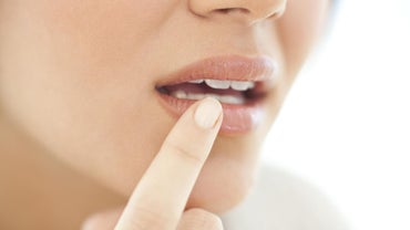 Can You Remedy a Cold Sore Overnight?