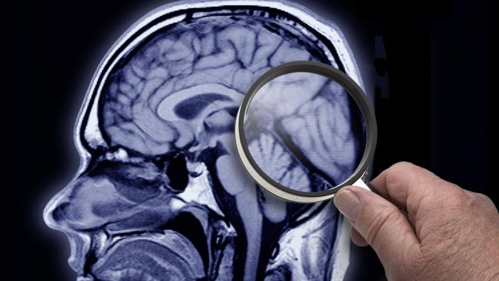 What Are Some Common Causes of Sudden Memory Loss?