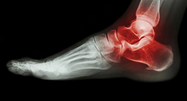 What Are the Treatment Options for Gout in Your Ankle and Foot?