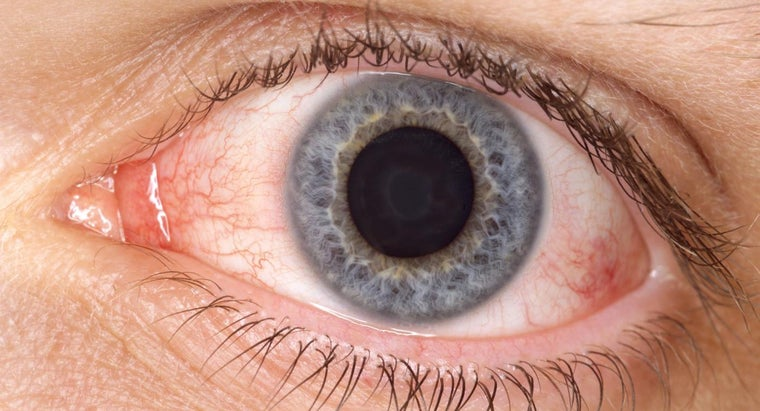 What Are Some Treatments for Pink Eye?