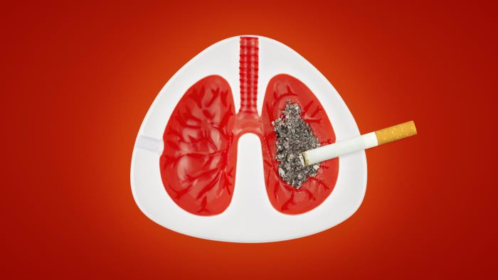 How Do You Get Lung Cancer?