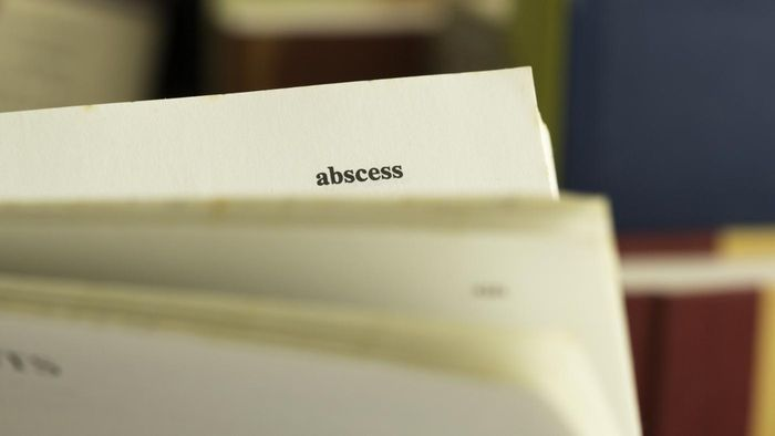 How Can You Treat an Abscess at Home?