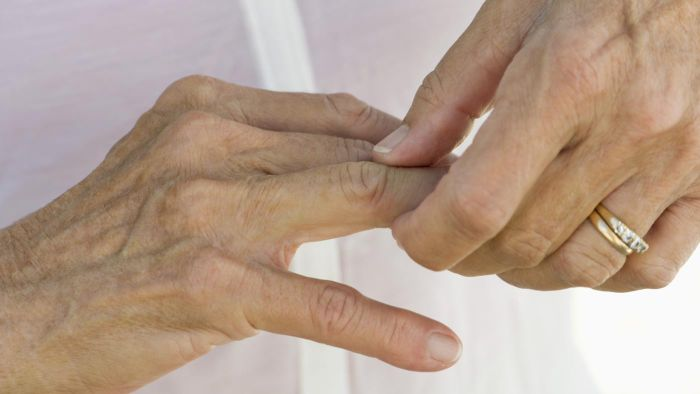 What are the signs of arthritis in your fingers?