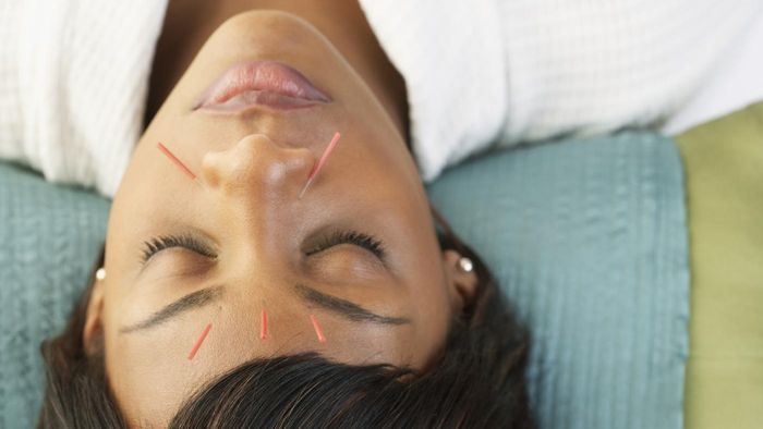 What Are Some of the Risks for Acupuncture Face Lifts?