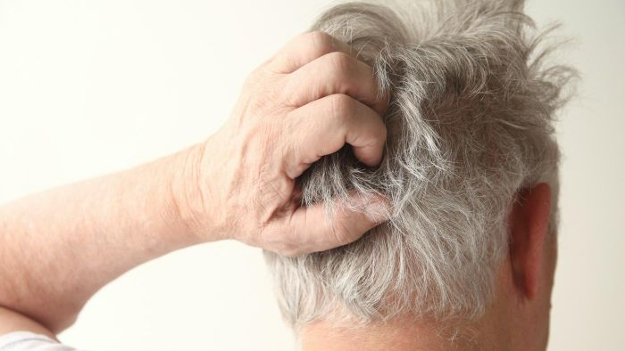 What Causes Scalp Itch?