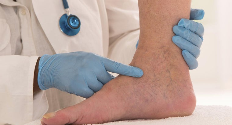 What Is a Natural Remedy for Varicose Veins?