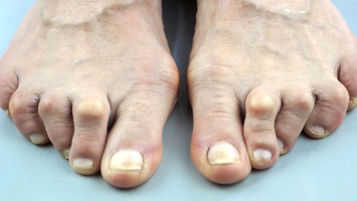 What Are Some Treatments for Arthritis in the Feet?
