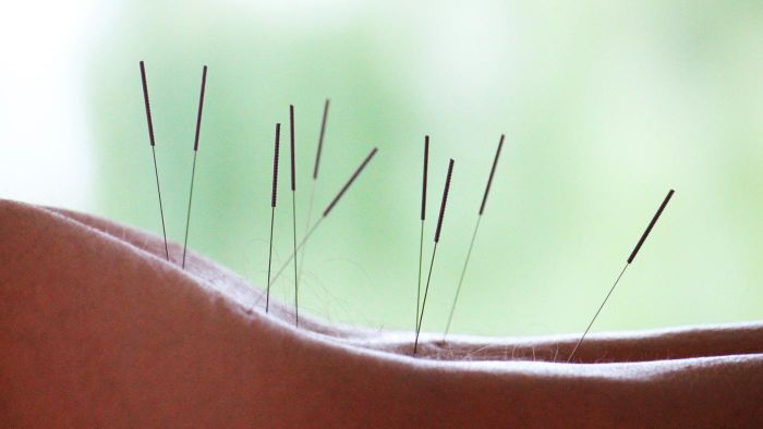 Is Acupuncture Effective for Sciatica Pain?