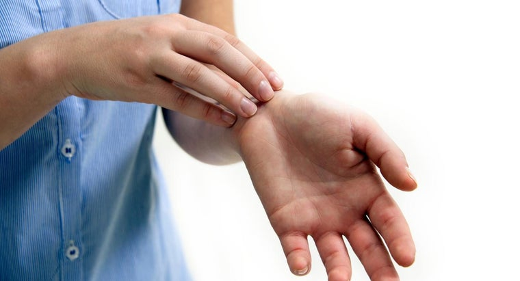 What Are Some Home Remedies to Relieve Itching Hives?