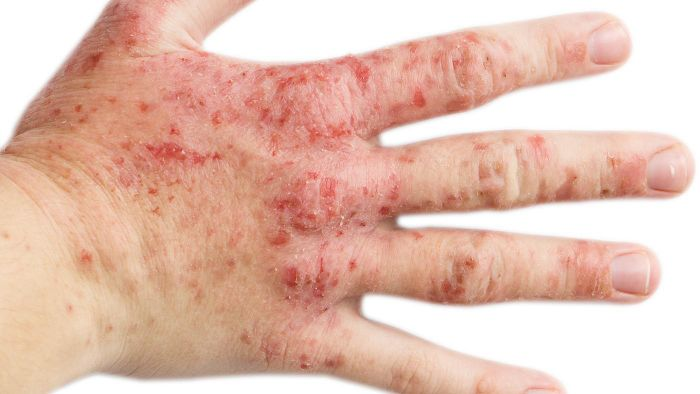 What are some home remedies for eczema?