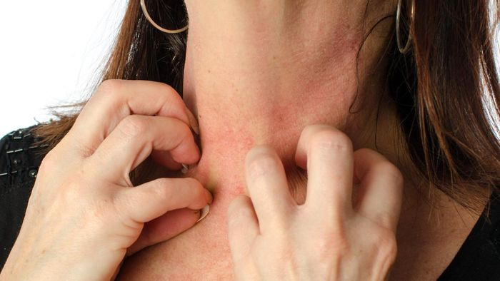 What Are Common Skin Diseases?