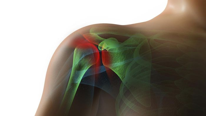 How Do You Avoid Rotator Cuff Surgery?