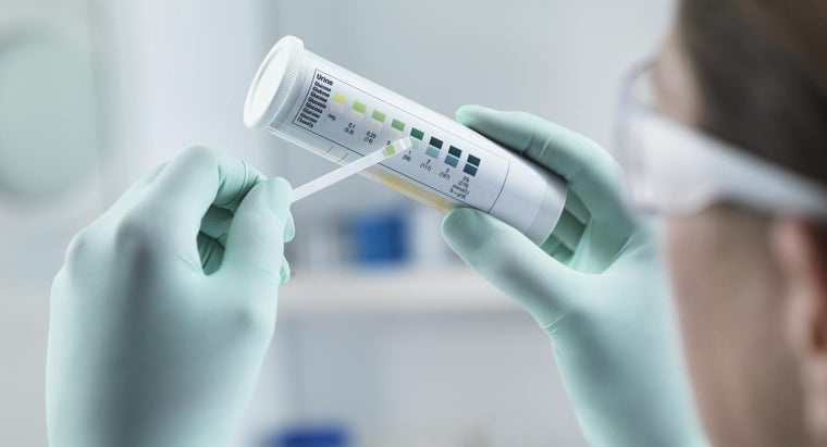 What Does It Mean When Your Urine Has a High White Cell Count?