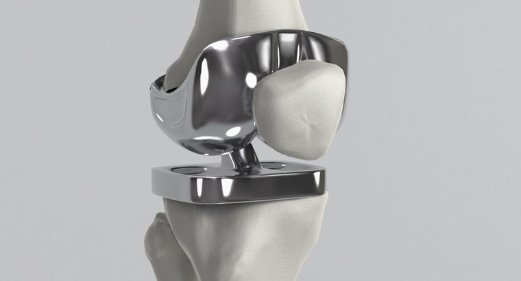 How Long Will a New Knee Last After Knee Replacement Surgery?
