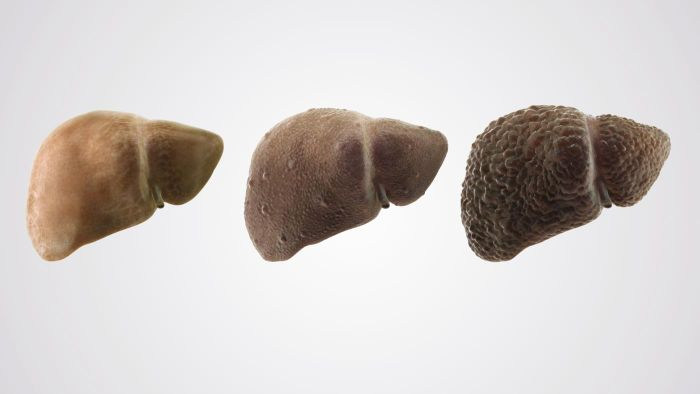 What Are Some Symptoms of Liver Cirrhosis?