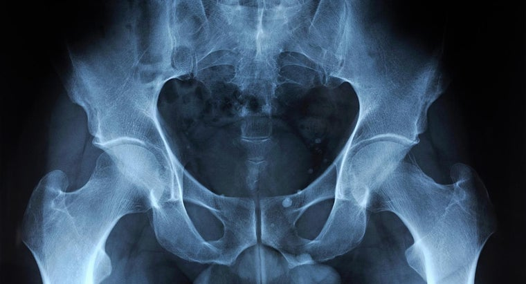 What Are Causes and Symptoms of Pelvic Pain?