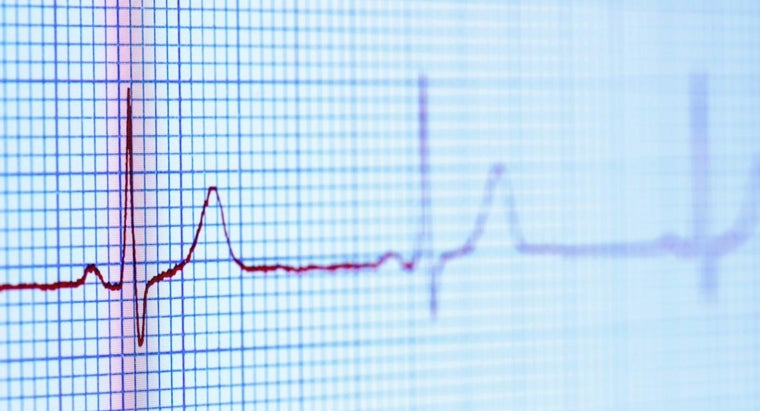 What Are the Types of Irregular Heart Beats?