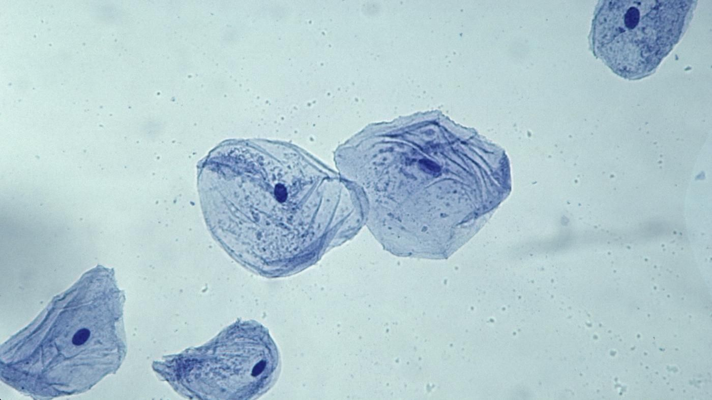 What is the general shape of a cheek cell reference pooptronica Choice Image