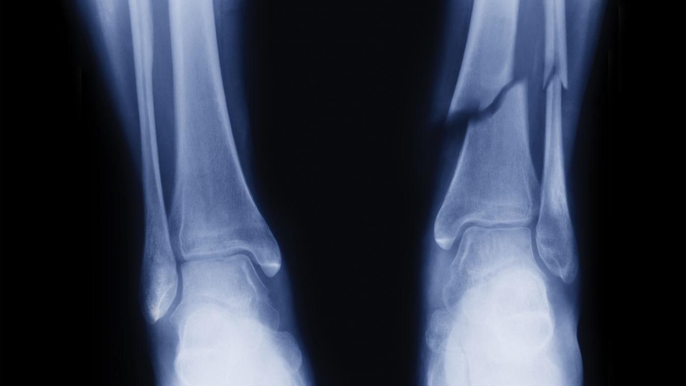 What Is the Healing Time for a Broken Fibula? | Reference.com