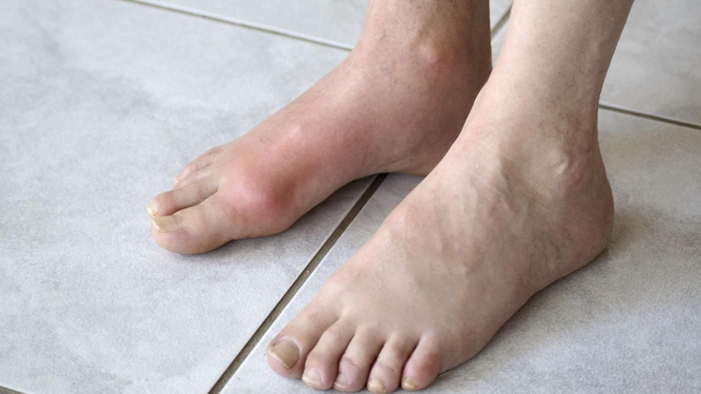 Which doctor treats gout 68
