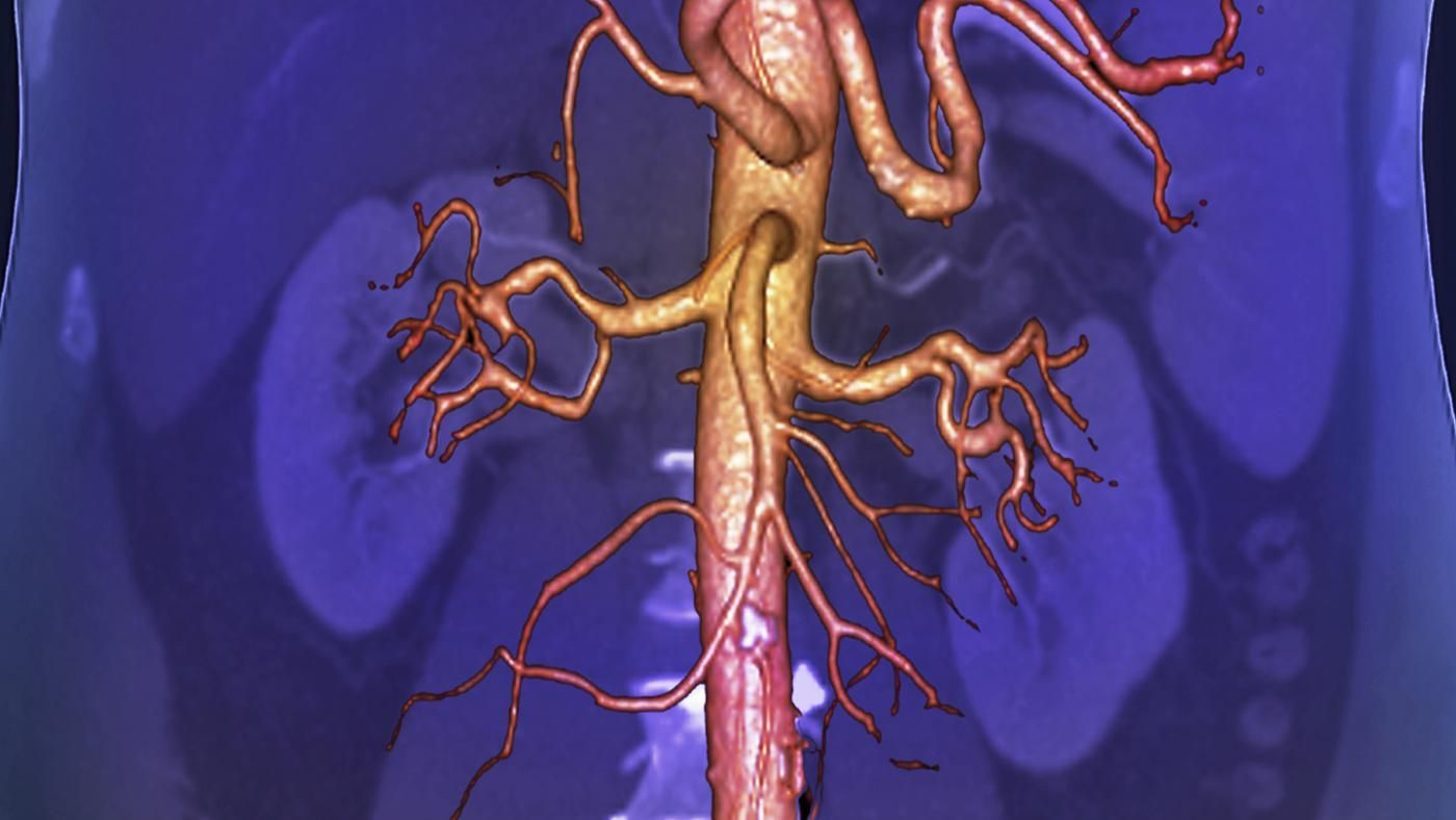 What Is The Largest Blood Vessel In The Human Body Reference