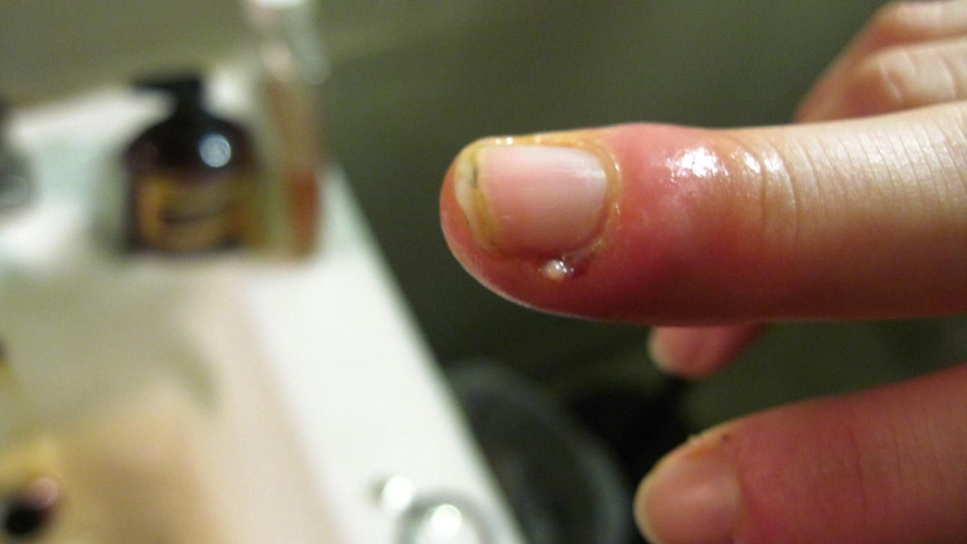 What Does a Person With a Swollen Finger From a Cuticle Infection ...
