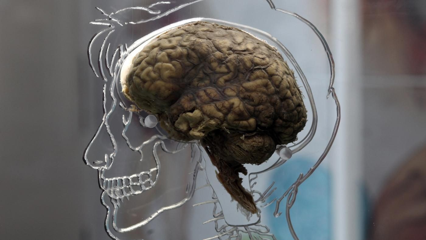 why do psychologists study the brain and the nervous system Psychologists study the brain in different ways artificial brain damages are induced in the laboratory by surgery, laser removal and through the use of drugs while natural brain damages may be caused by environmental hazards that are naturally occurring or by some unusual and/or common.