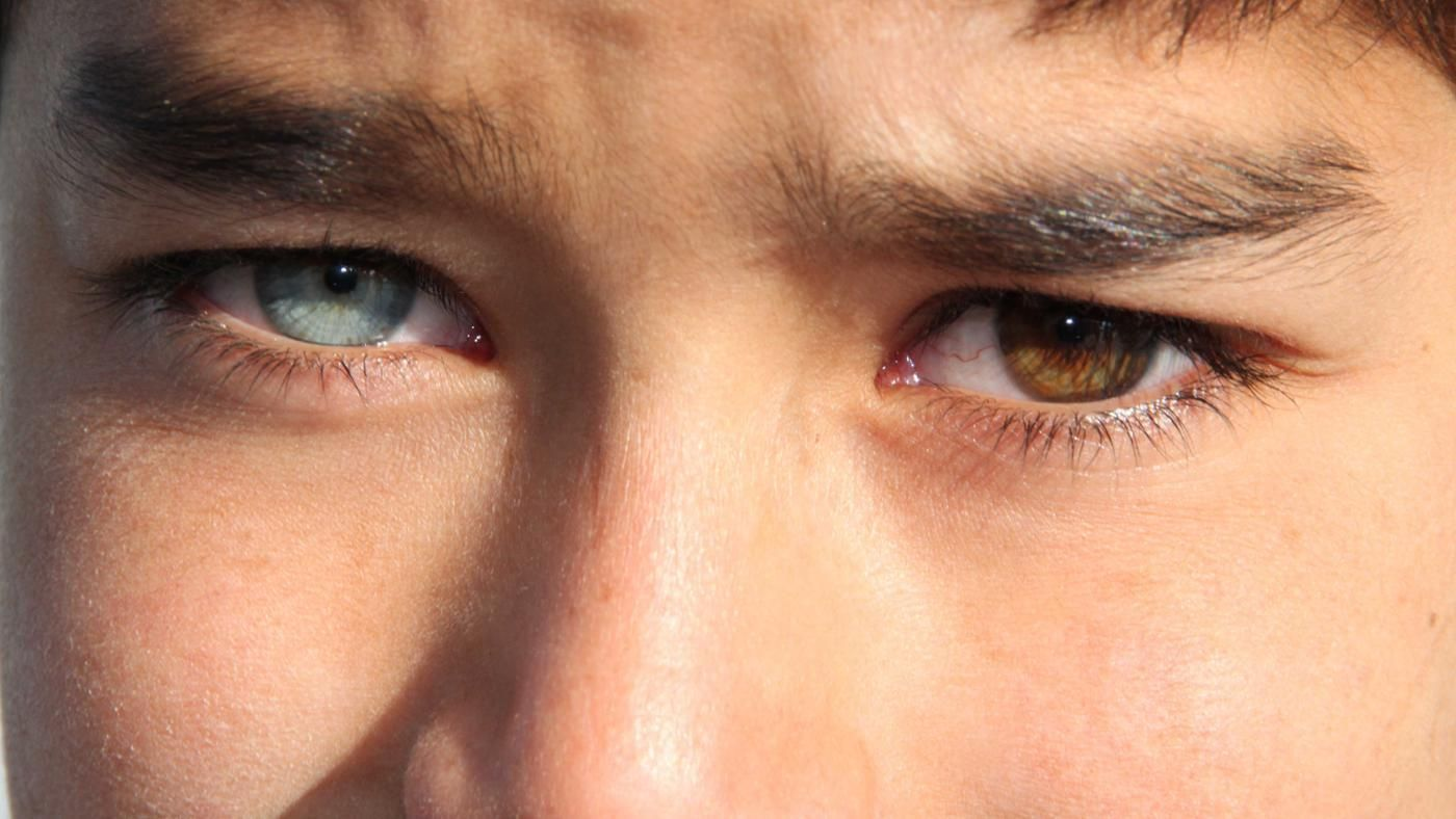 how rare is heterochromia in humans. Black Bedroom Furniture Sets. Home Design Ideas
