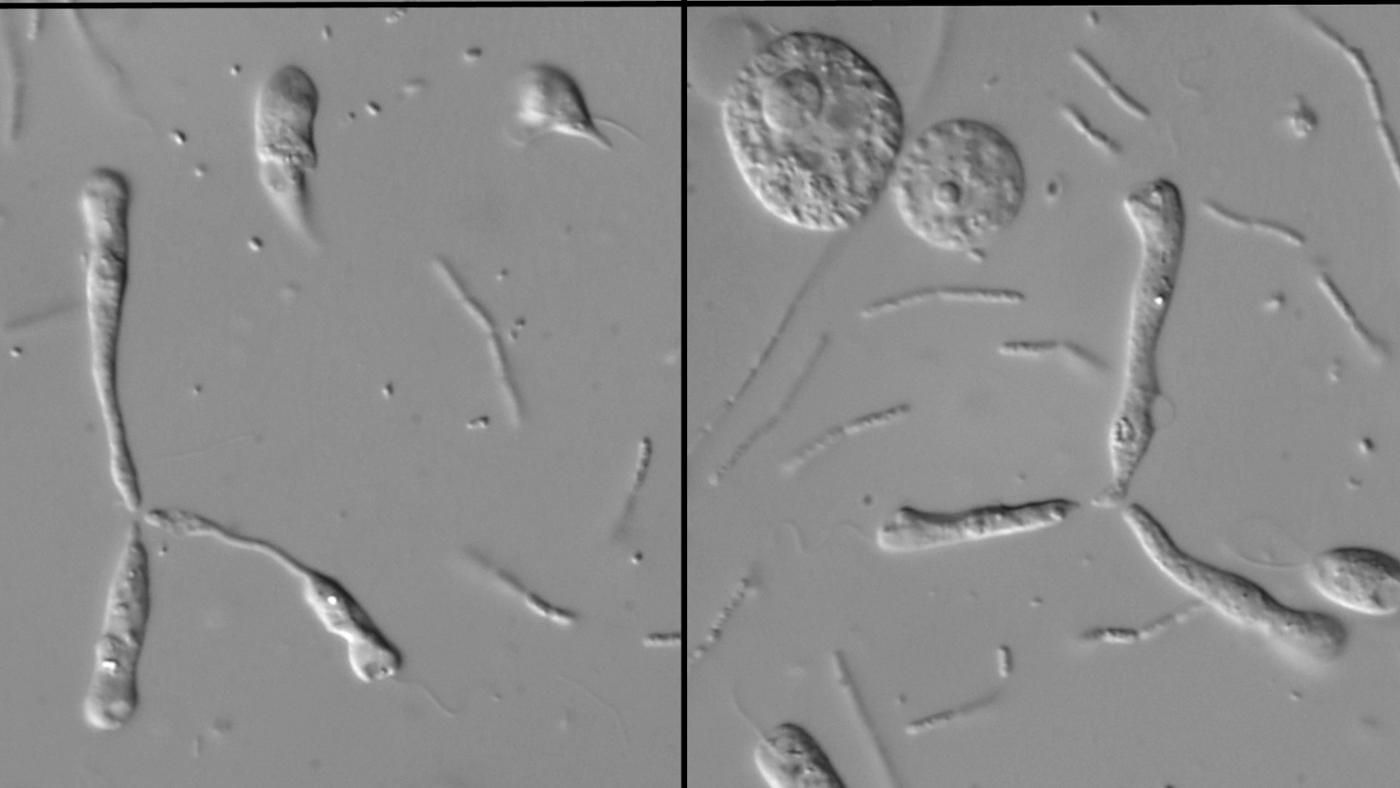 the similarities and differences between the types of movement of heterotrophic protists Biologists generally categorize protists according to their mode of movement, or locomotion all protists can travel through water by one of three methods: cilia, flagella, or pseudo/axopodia.