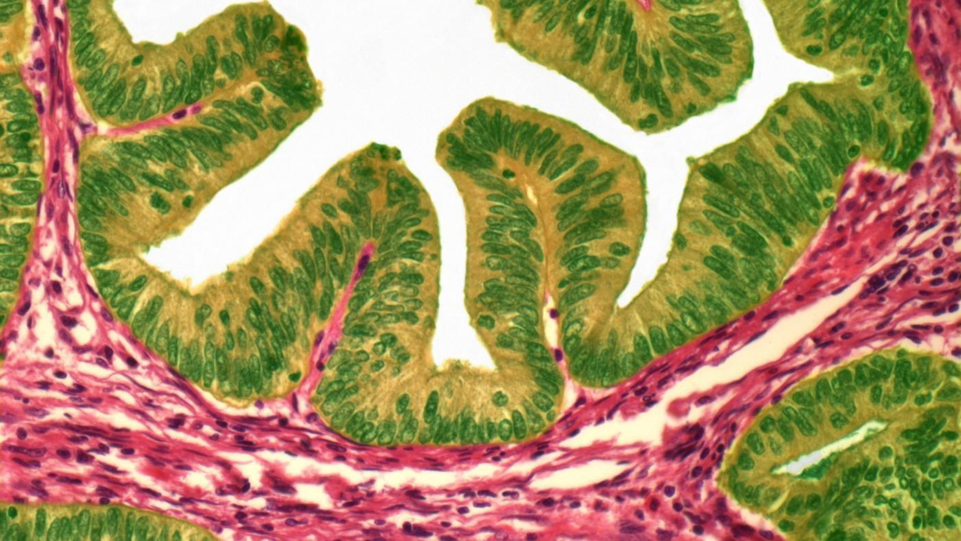 what percentage of uterine polyps are cancerous