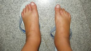 What Are the Causes of Swollen Feet?