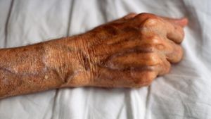 What Causes the Veins to Bulge in the Hands and Arms?